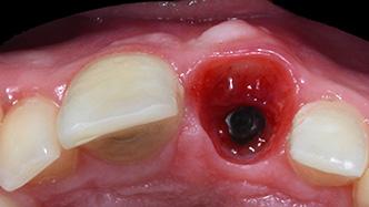 seminaire Les grands principes du traitement implantaire